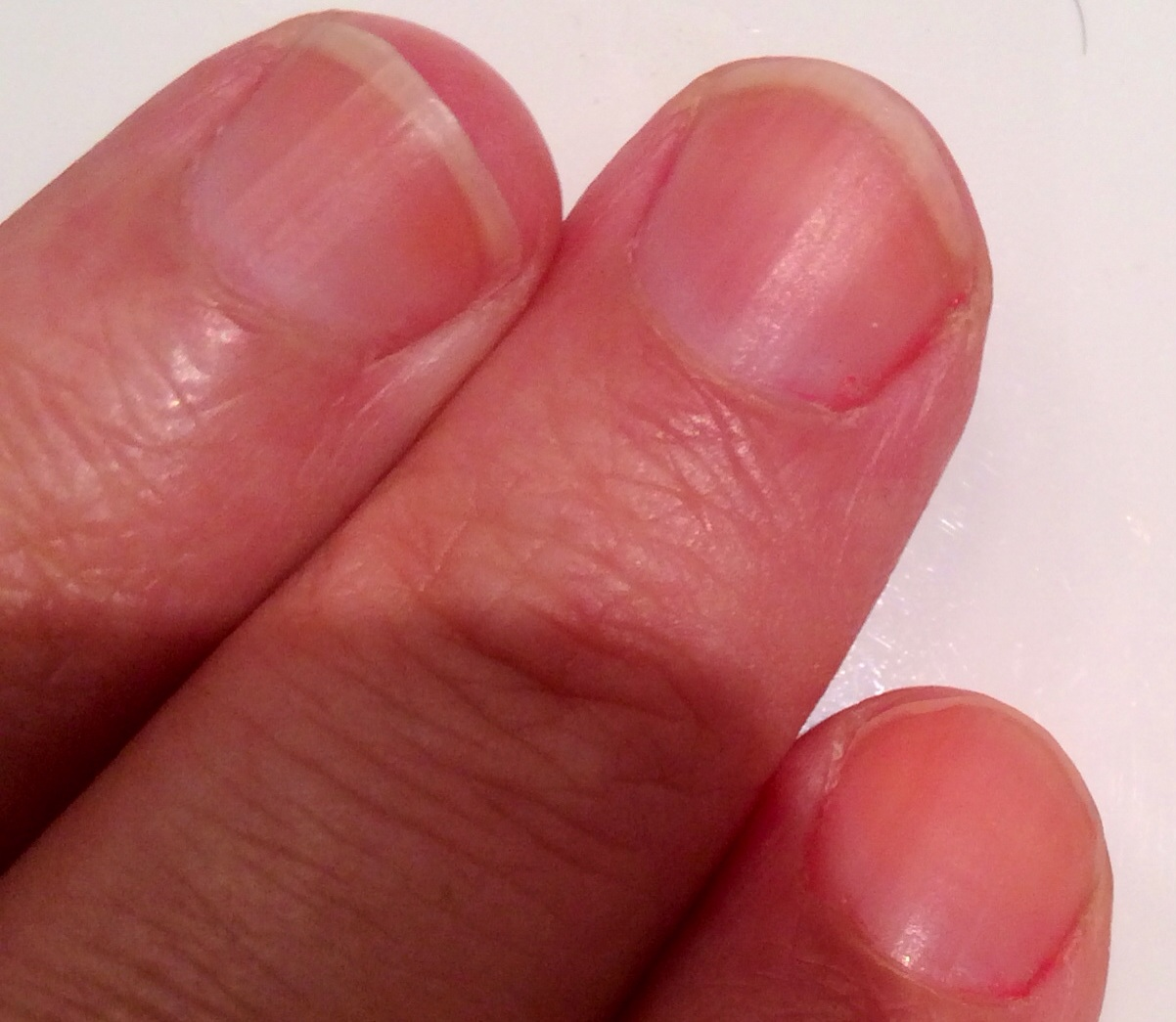 Tache blanche sur les onfles vous avez peut tre un manque plus ou moins important de magn sium - Tache de resine sur vetement ...