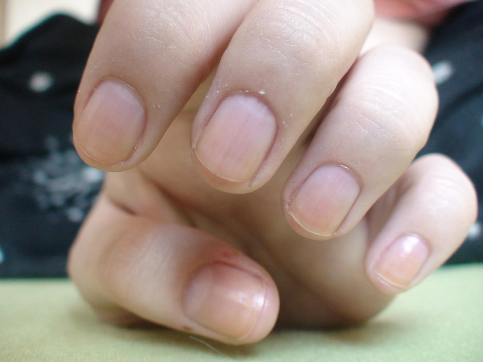 Pourquoi sémiettent les ongles sur les pieds le traitement