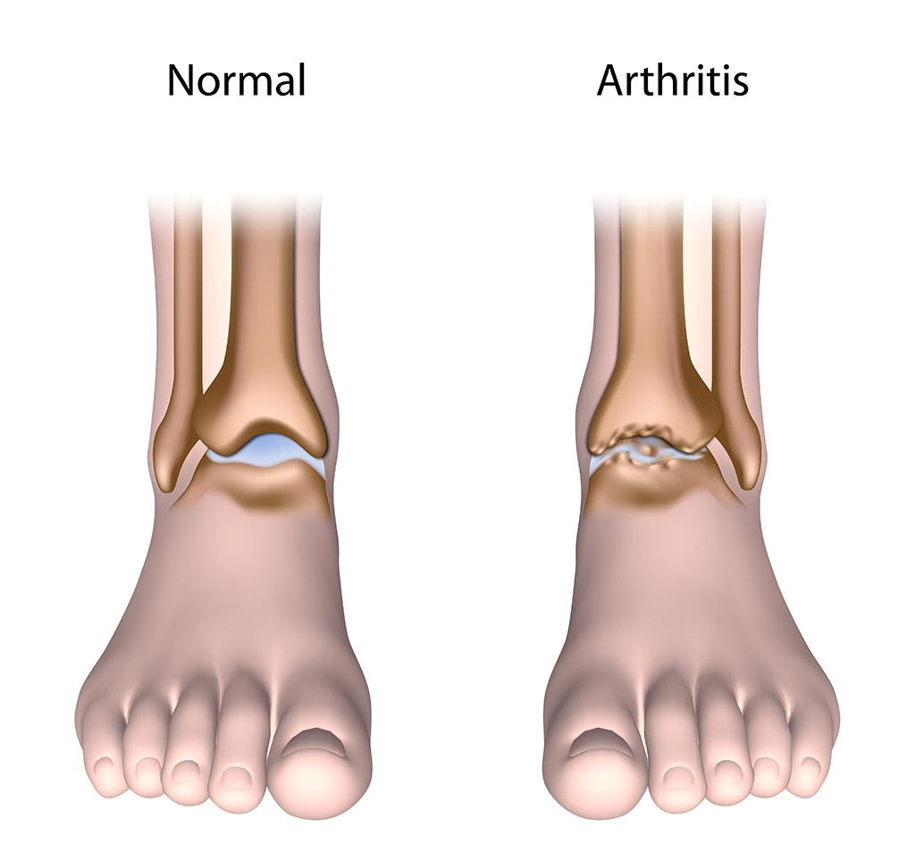 Où se situe généralement l'arthrose?
